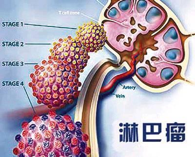 引起淋巴癌的原因有哪些?这些原因你知道吗?