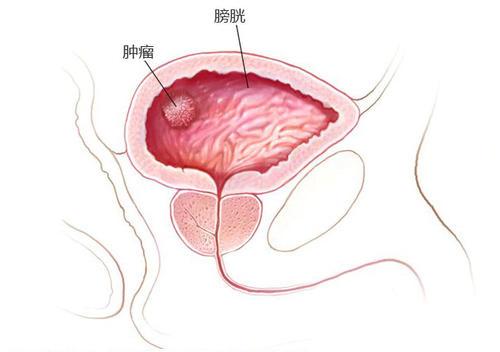 膀胱癌会给我们的身体带来哪些伤害?