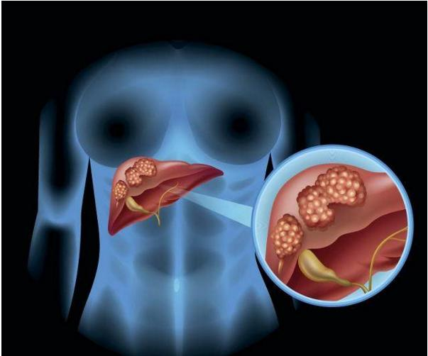 哪些人更容易患有肝癌?